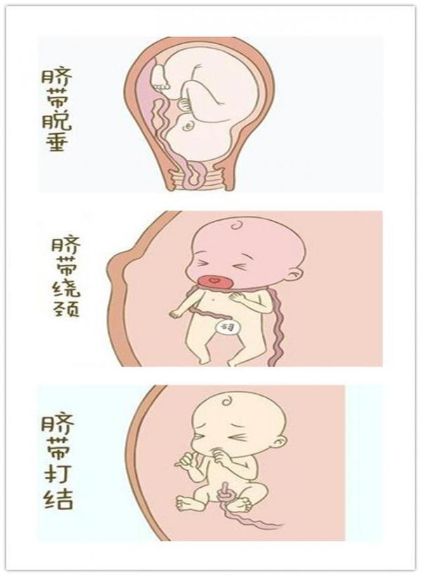孕妇产前知识大全 1
